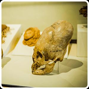Deformed skull - Ica