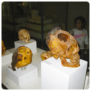 Trepanated Skull at Ica Museum